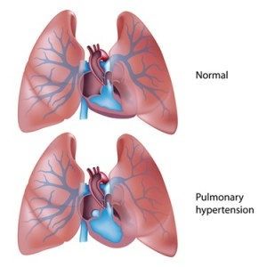 Constriction of the pulmonary vessels leads to a build up of pressure in the heart, resulting in thickening (hypertrophy) of the heart wall muscles